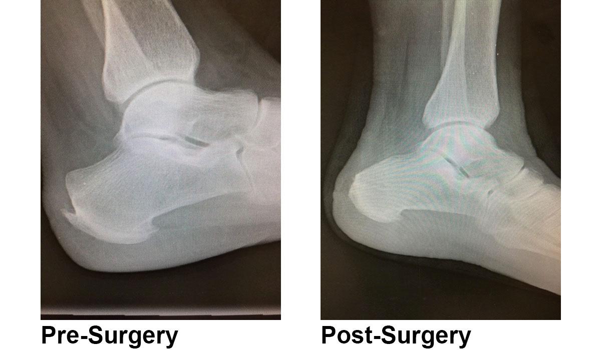 haglunds deformity surgery
