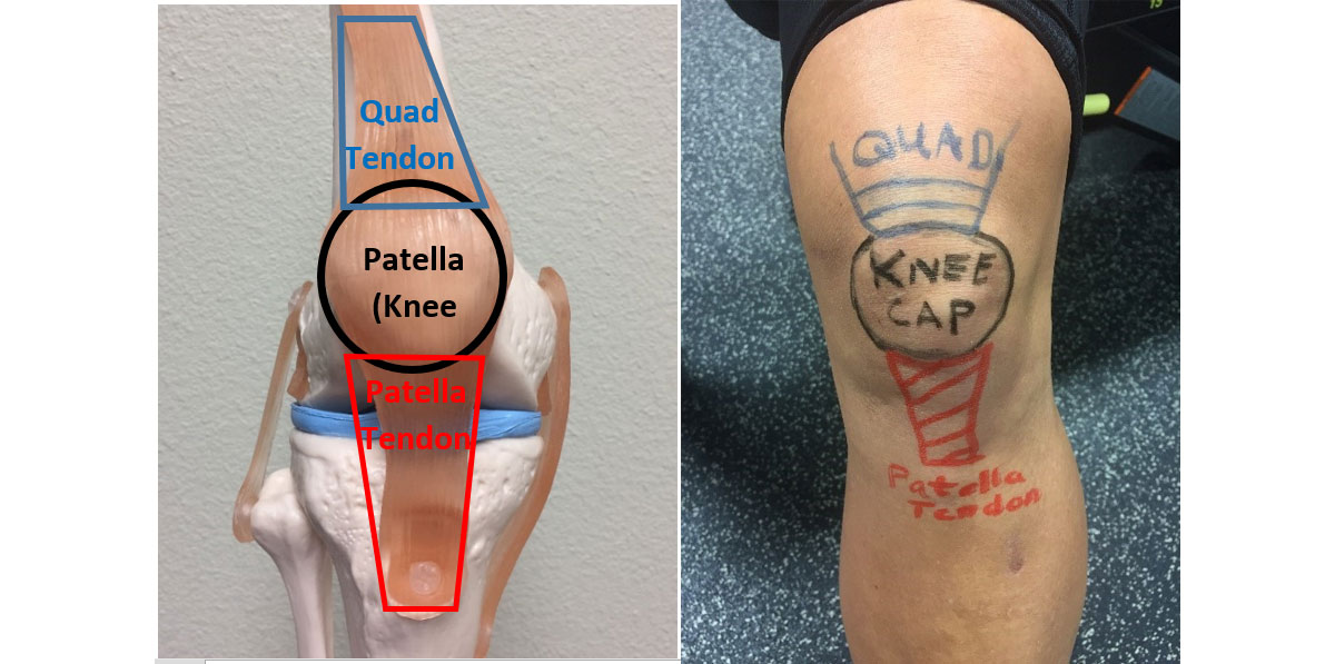patella tendonitis